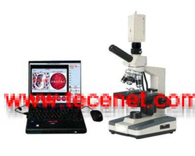 一滴血检测仪(单目一体型)分析