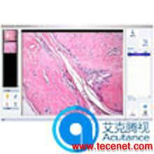 病理分析诊断图像报告系统