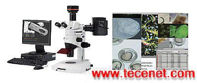 显微图像分析测量系统