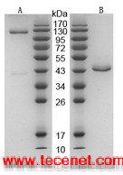 白细胞介素-2-FC