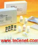 人抗流行性出血热病毒抗体IgM 试剂盒