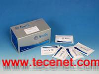 大鼠去甲肾上腺素(NA)ELISA试剂盒