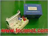 甲状腺刺激抗体(TSAb或TSI)试剂盒