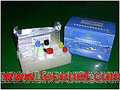 TRAb检测试剂盒