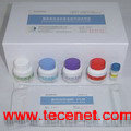 糖尿病自身抗体免疫印迹试剂盒